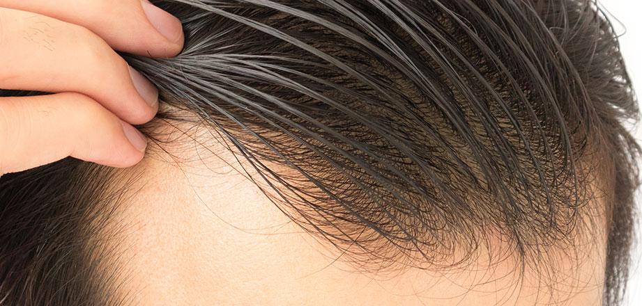 Trovärdigt resultat efter hårtransplantation